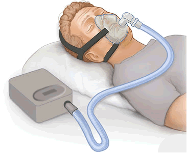 marijuana sleep apnea
