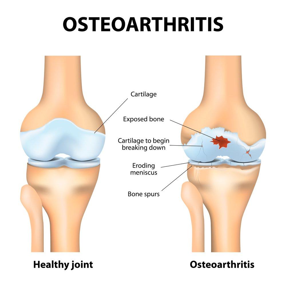 Osteoarthritis or arthritis
