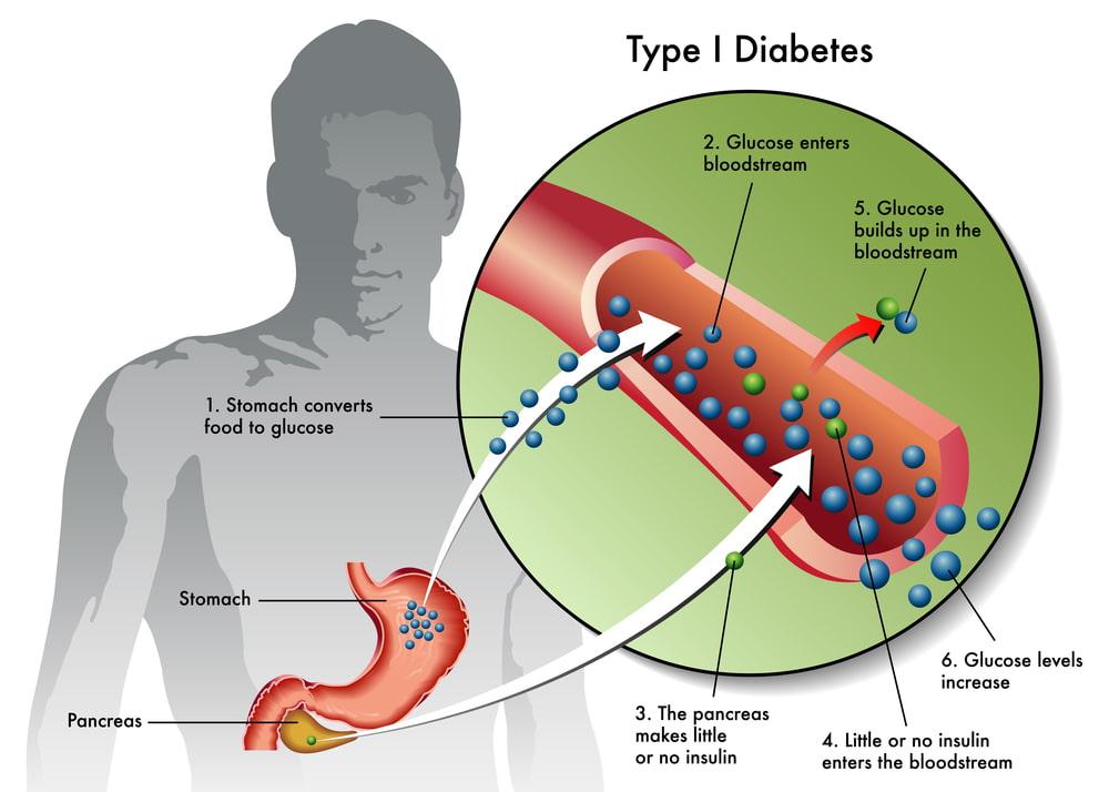 diabetes type 1 and marijuana