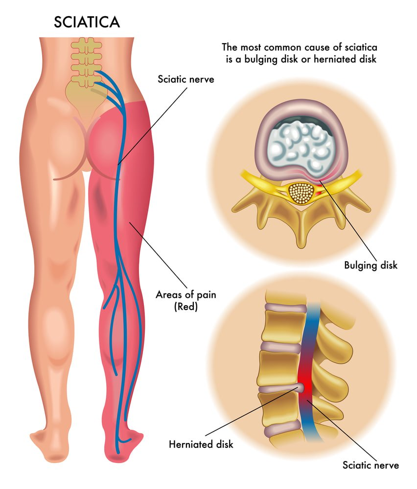 What is sciatica... and can CBD really help?