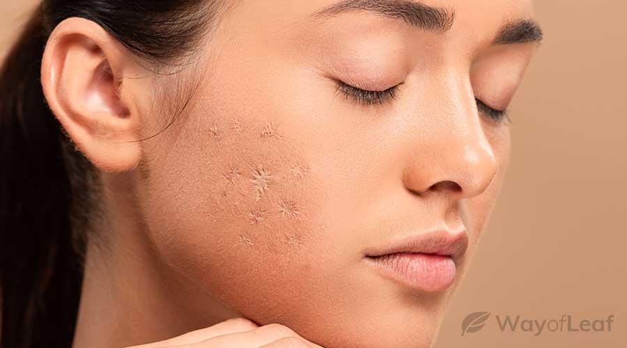 cbd-oil-for-scars