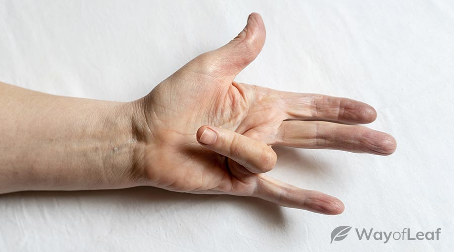 natural-remedies-for-dupuytren's-contracture
